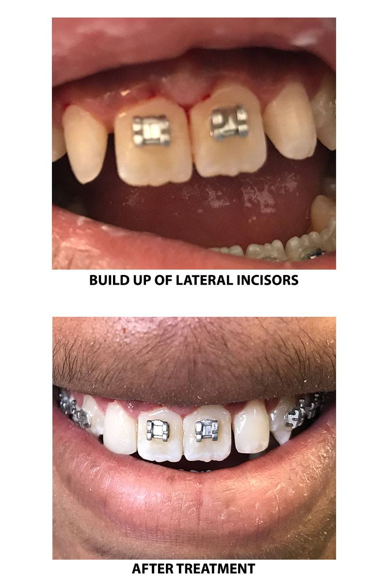 Build up of lateral incisors