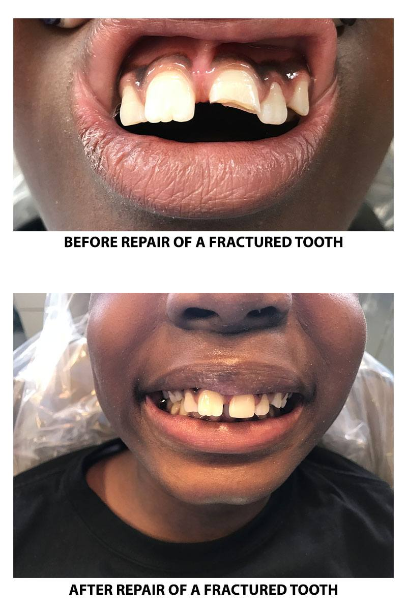 Repair of a fractured tooth