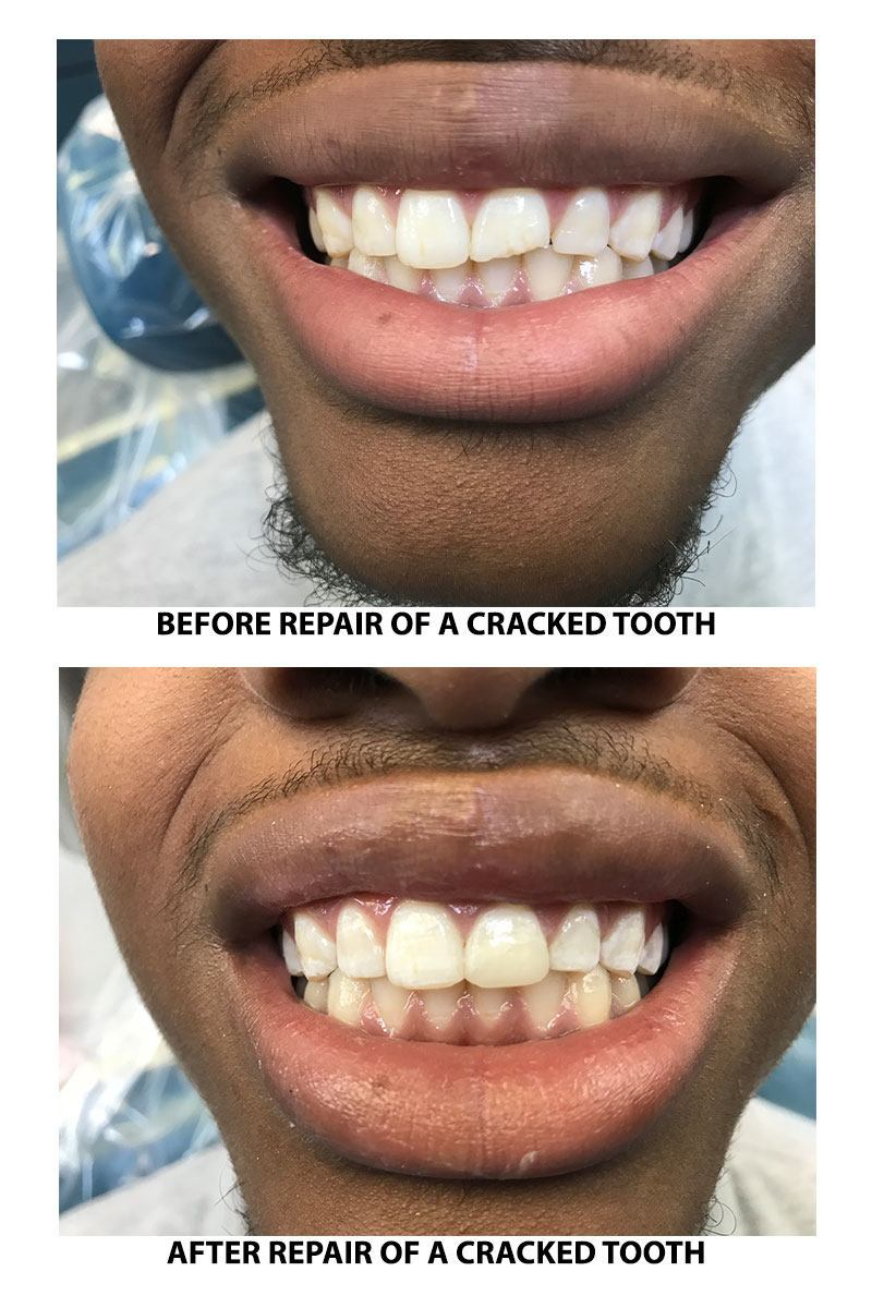 Repair of a cracked tooth