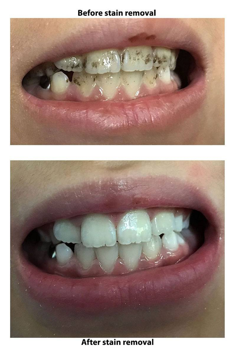 Dental Stain Removal