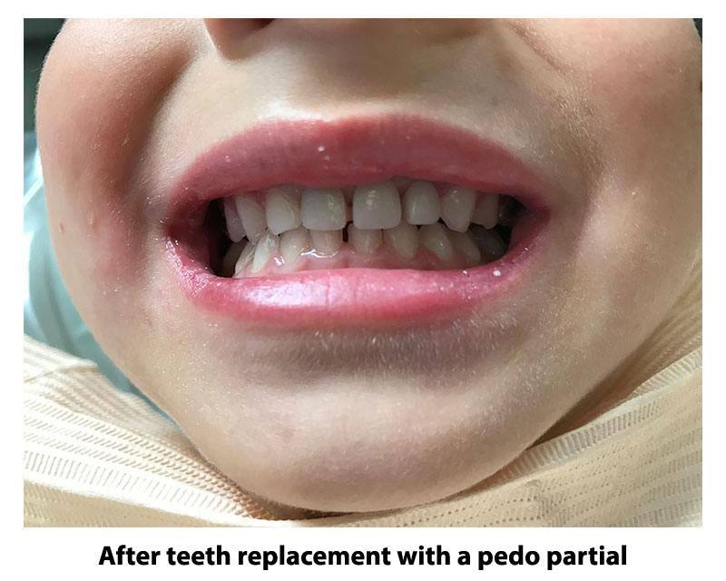 Teeth replacement with a pedo partial